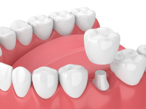 dentist in charlotte dental crowns