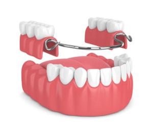 dentist in charlotte - complete and partial dentures