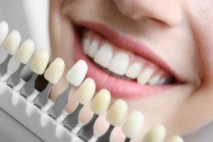 cosmetic dentist in charlotte