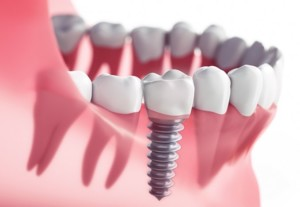 Uptown Charlotte Dentist Dental Implants