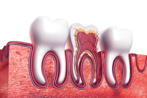 ROOT CANAL dentist in CHARLOTTE