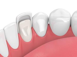 dentist in charlotte dental veneers
