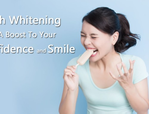 Teeth Whitening For People With Sensitive Teeth