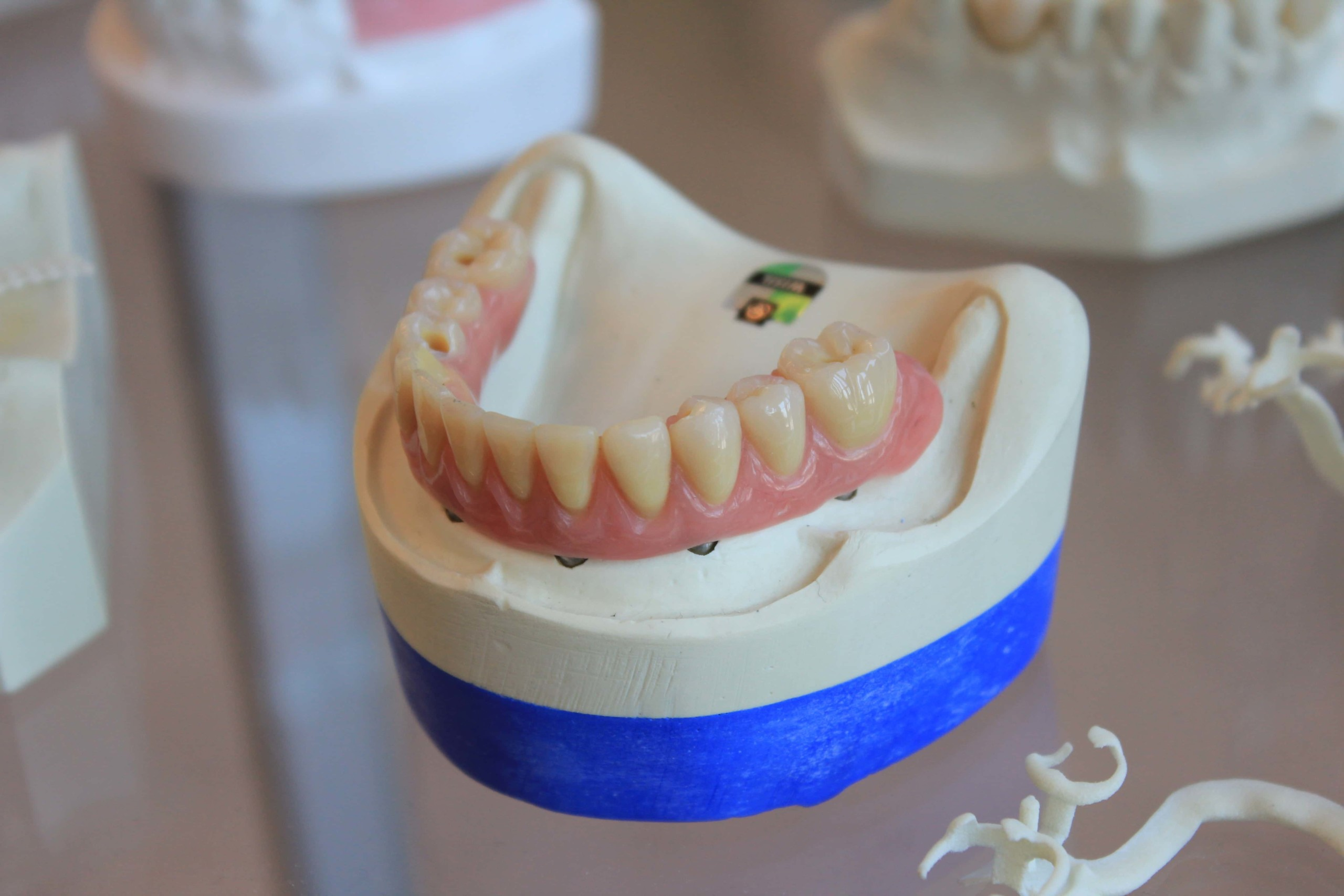 Adult Tooth Decay & Your Options