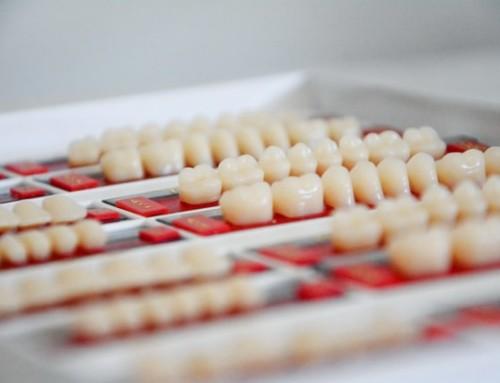 Where Can I Get Dental Veneers In Charlotte NC?
