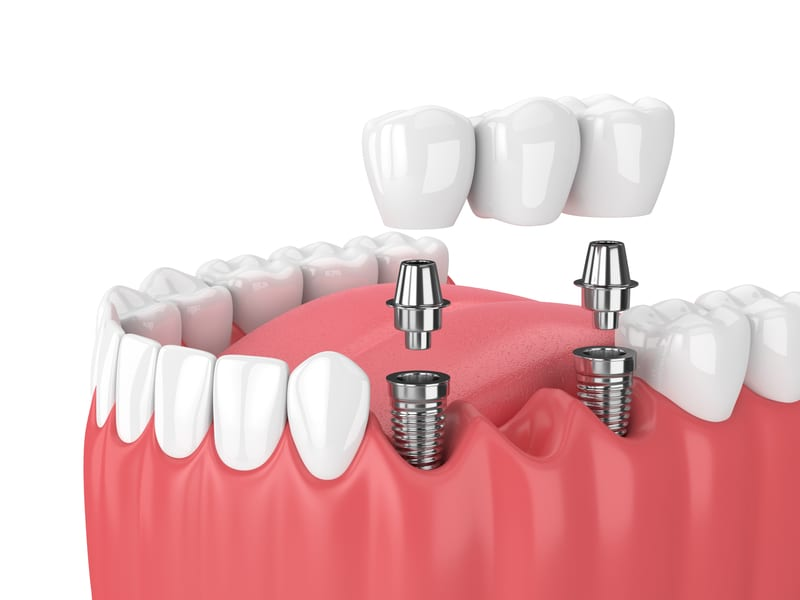 Facts and Myths About Dental Bridges