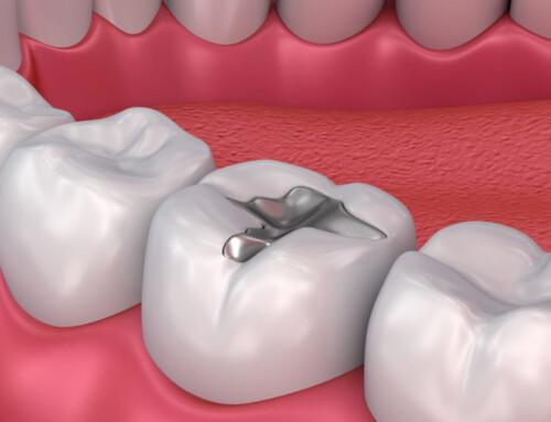 Dental Filling FAQs