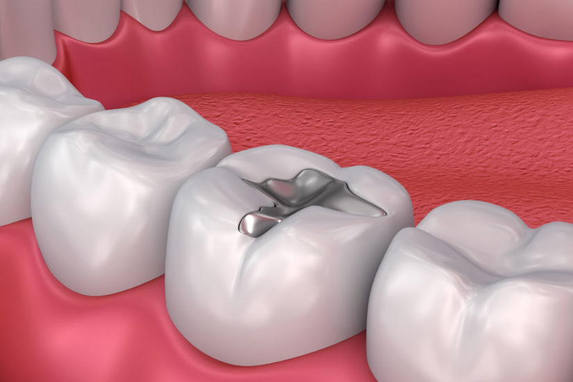 Frequently Asked Questions About Dental Filling