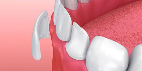 dental veneers charlotte nc