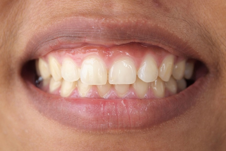 gum contouring - District Dentistry