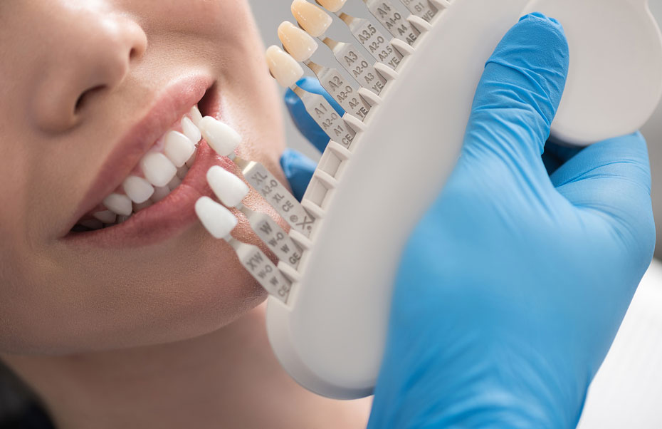 Important Facts That Explains The Importance Of Dental Crowns - District Dentistry