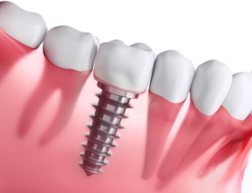 Step By Step Analysis Of Dental Implants Procedure