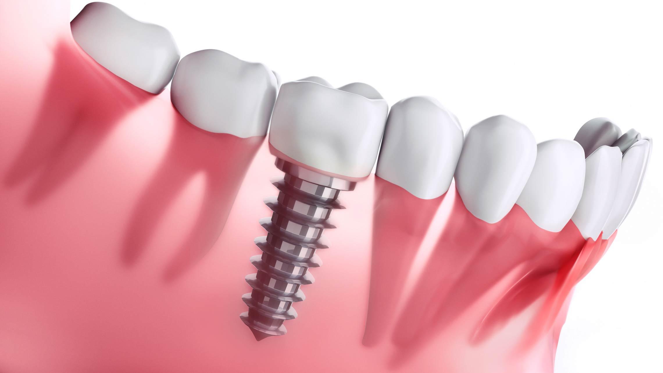 Dental Implants Procedure Explained - District Dentistry Charlotte