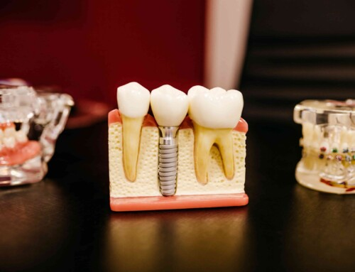6 Adverse Effects of Dental Implants