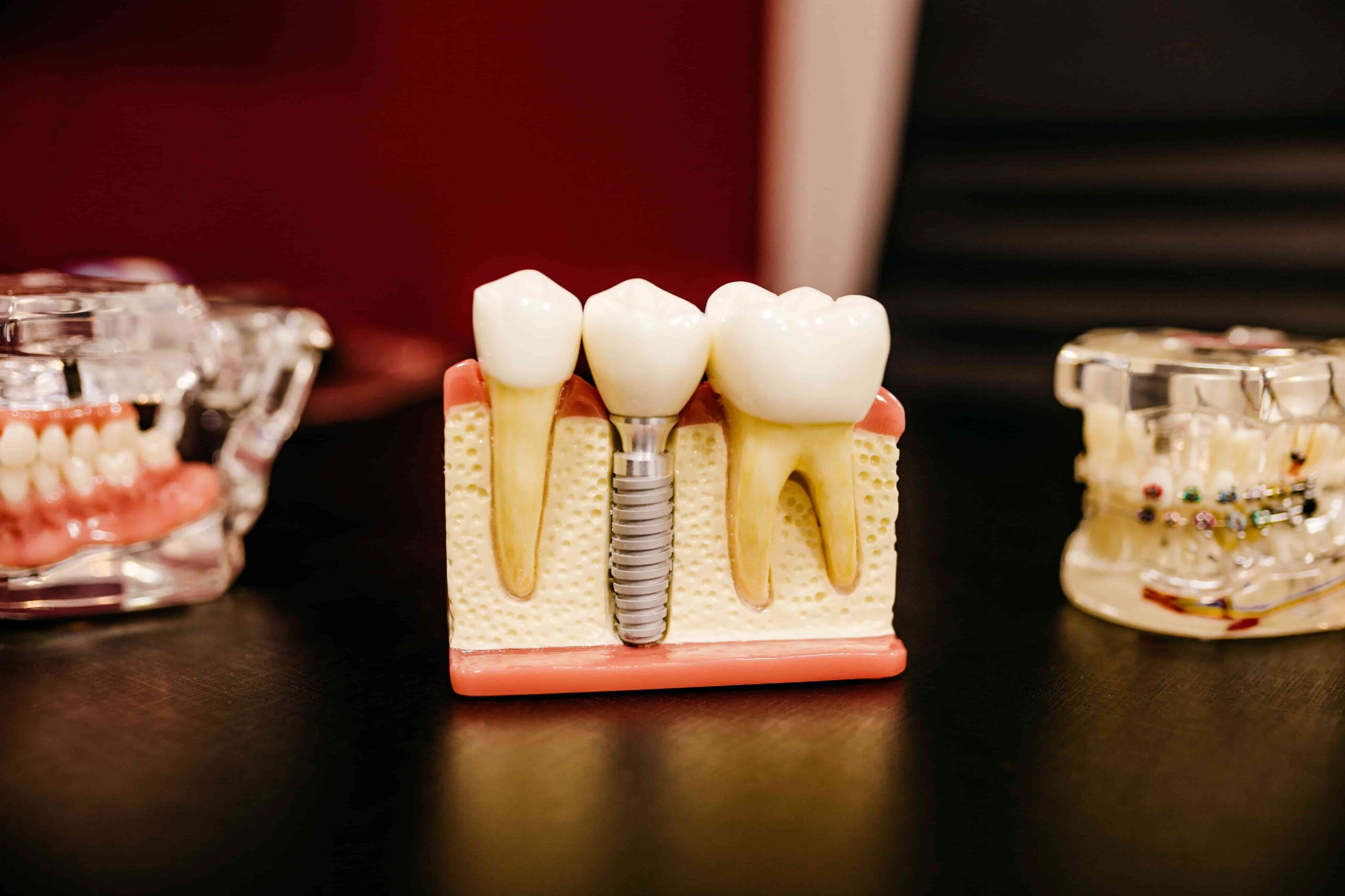 6 Adverse Effects of Dental Implants - District Dentistry